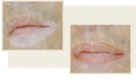 白斑・傷痕のカモフラージュの再建コースイメージ写真