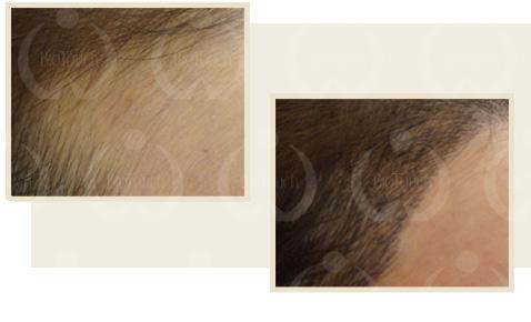 頭髪のカムフラージュの再建コースイメージ写真